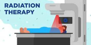 Radiation-therapy-to-save-cancer