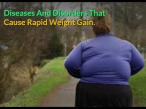 diseases cause rapid weight gain
