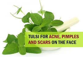 tulsi plant/tulsi for skin, pimple,face.