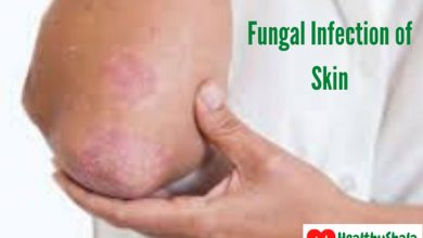 Photo of Skin Fungal Infection | Types, Symptoms, Cause, And Treatments