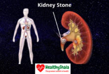 Photo of Kidney Stones: Causes, Symptoms, Types, And Treatments (Home Remedies)