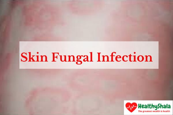 Skin Fungal Infection